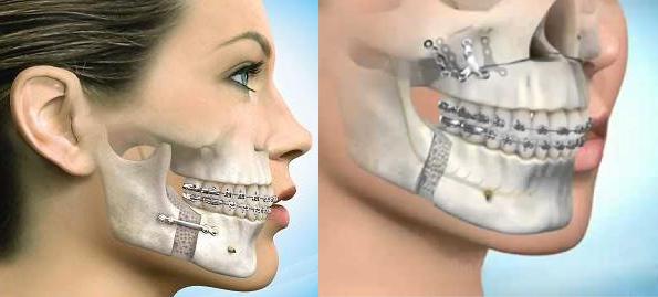 Cirurgia Ortognática.