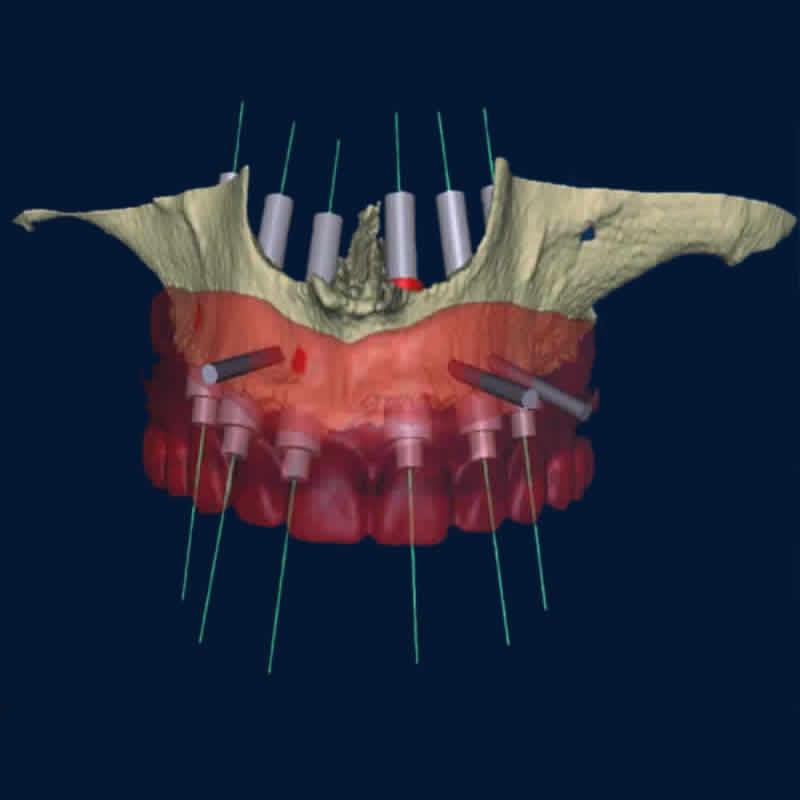 cirurgia_guiada